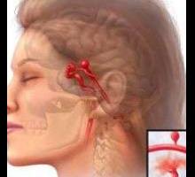 Η τεχνική του υποβοηθούμενου εμβολισμού στη θεραπεία των ανευρυσμάτων εγκεφάλου